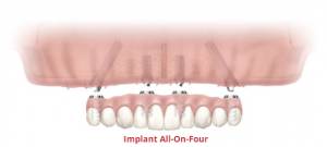 implant-all-on-four